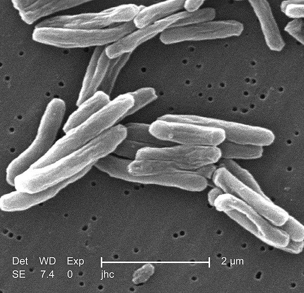 621px-Mycobacterium_tuberculosis.jpg